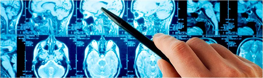 Неврологическое обследование в Германии